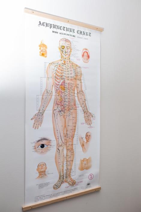 minnesota acupuncture